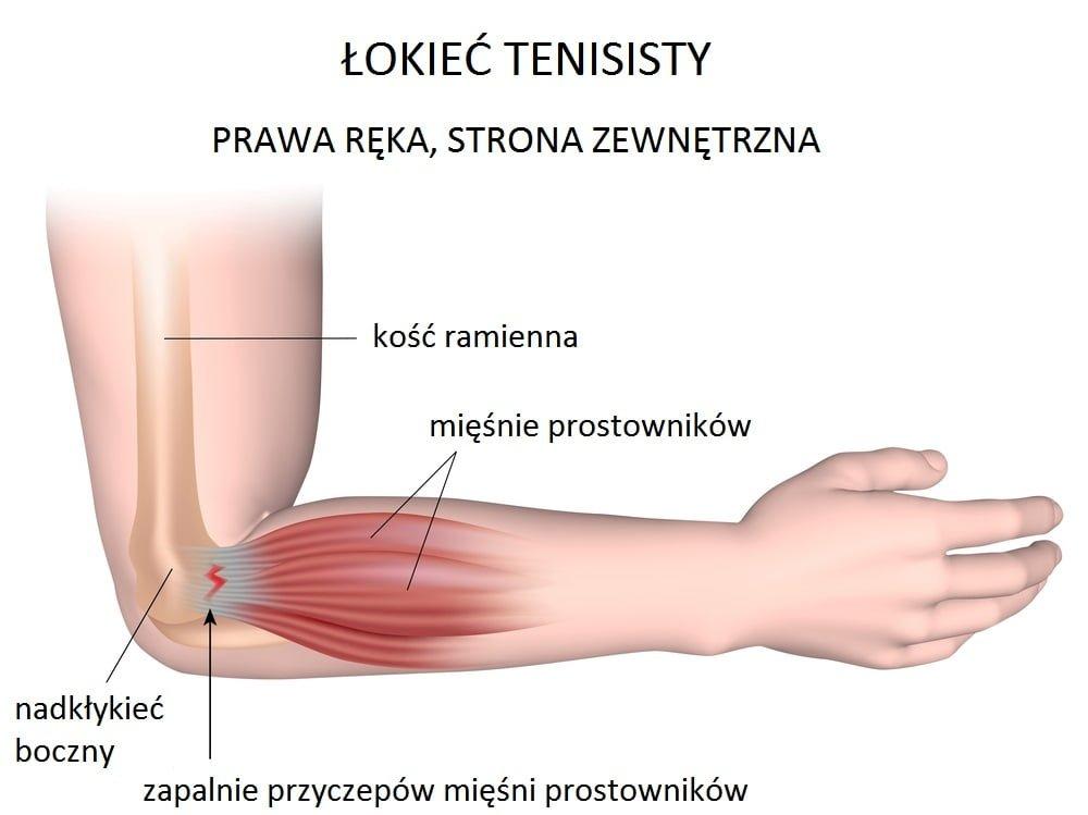 lokiec-tenisisty-leczenie-krakow